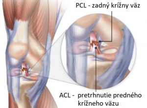 ACL - pretrhnutie predného krížneho väzu