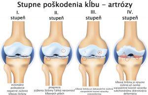 Artritída kolena - stupne poškodenia kĺbu