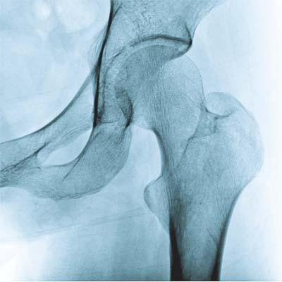 diagnózy bedrového kĺbu a ich liečba