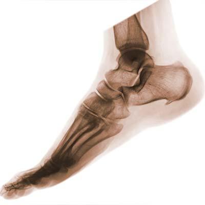členok a noha - ortopedické ochorenia a liečba