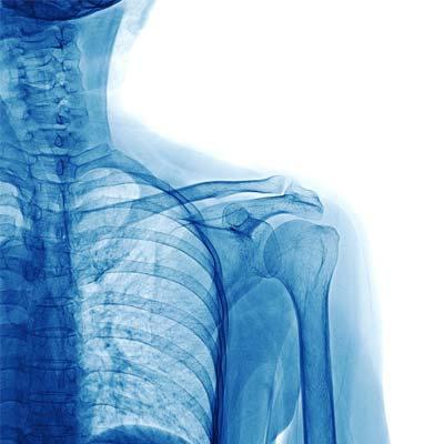 ochorenia a liečba ramenného kĺbu