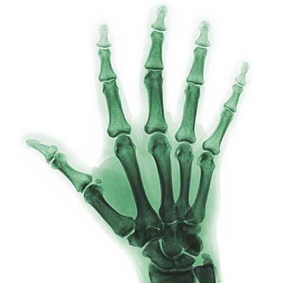 ochorenia a liečba ruka a zápästia