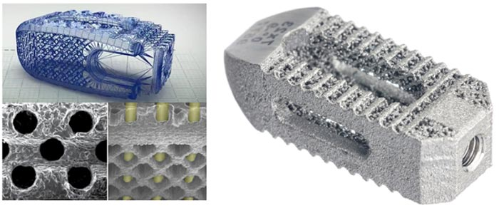 3D tlač vortopédii - implantát na interspinálnu fúziu