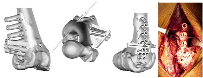 3D tlač vortopédii 1